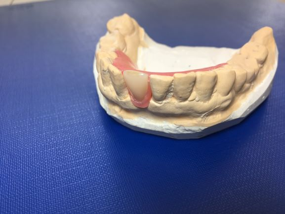 One Tooth Denture